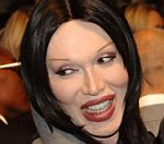 Pete Burns 'Critically Ill', Undergoes 5 Hour Operation